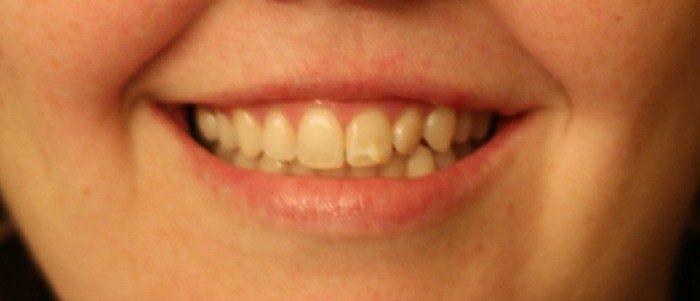 Listerine mouthwash makes me smile just my smile