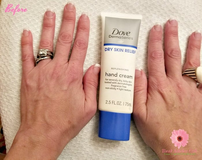 Give those dry, dull hand some love with Dove Derma hand cream.